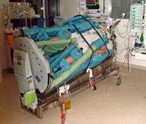 Die Betreuung von Covid-Patient*innen ist deutlich personalintensiver als bei normalen Intensivpatient*innen. Foto: Wiki